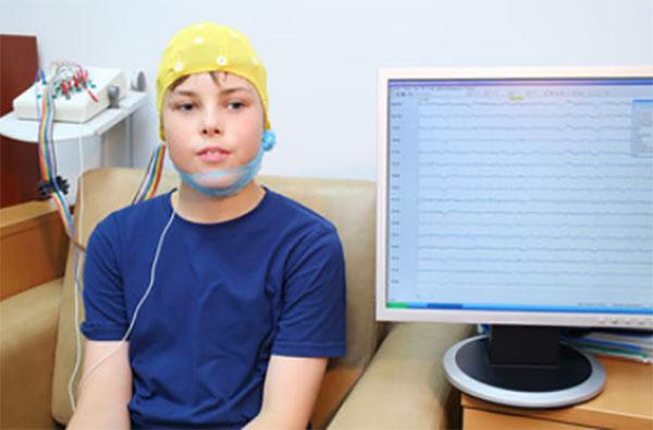 Ребенку проводят электроэнцефалограмму