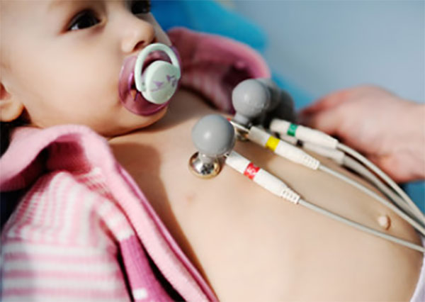 Грудному ребенку делают ЭКГ