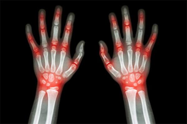Рентгеновский снимок кистей ребенка. Красным подсвечены воспаленные места