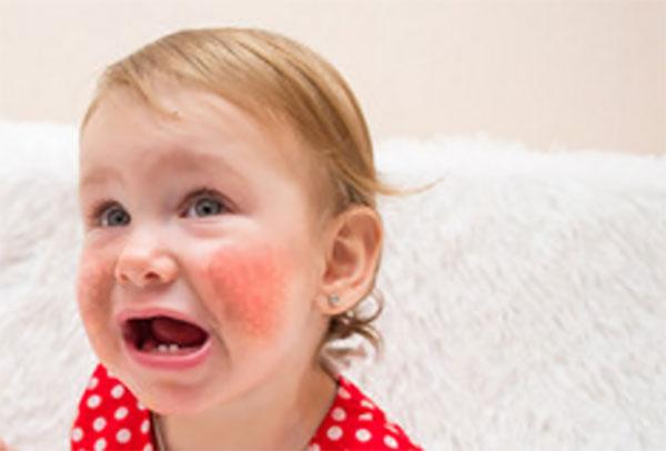 Девочка с красными щеками собирается заплакать