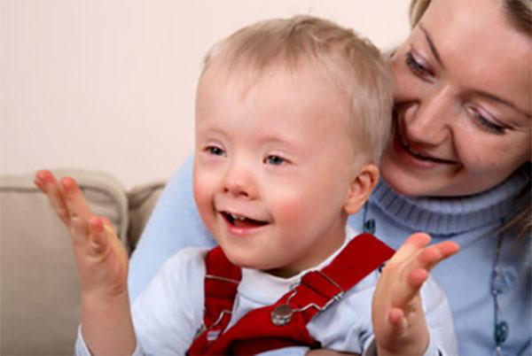 Ребенок с синдромом Дауна у мамы на руках