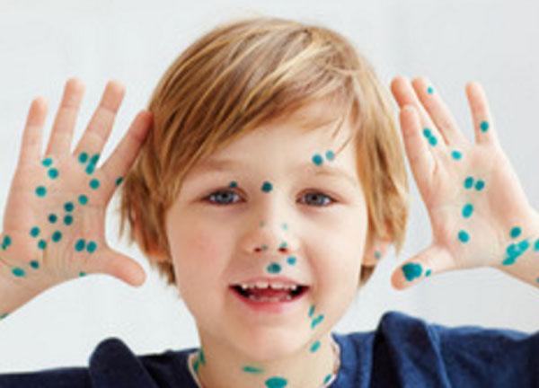 Ребенок показывает руки в зеленке
