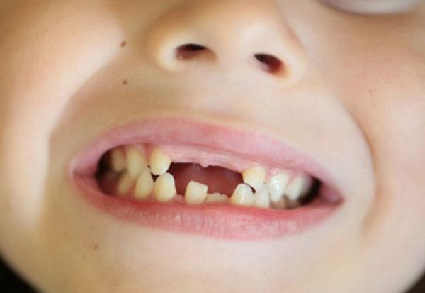 Ребенок улыбается. Во рту не хватает зубов