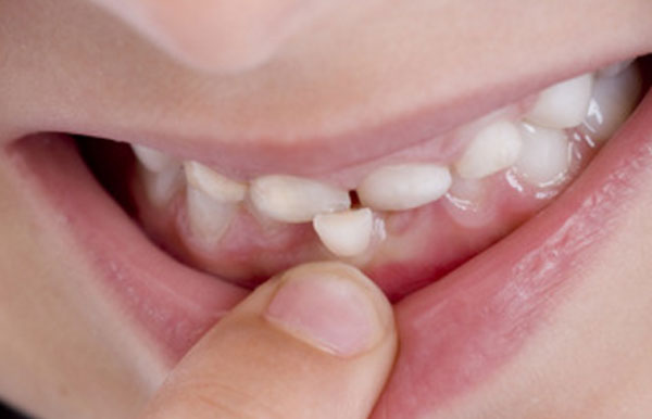 Рот ребенка с шатающимся зубом
