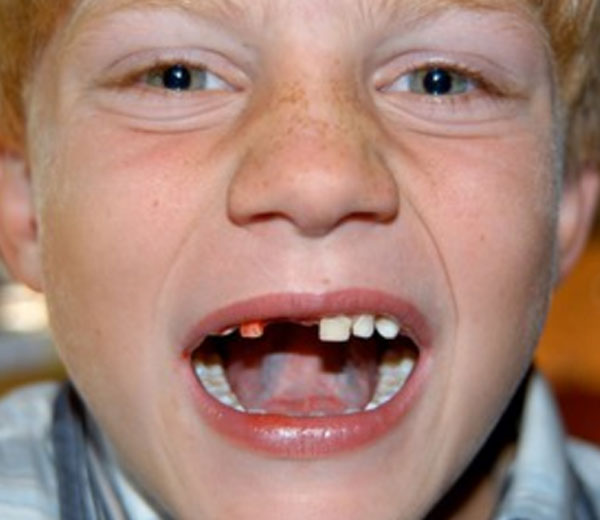 Ребенок плачет. Видно, что недавно удалили зуб