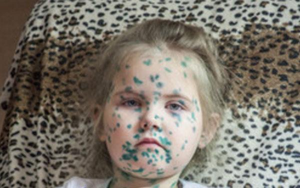 Лицо девочки после ветрянки. Все измазанное зеленкой