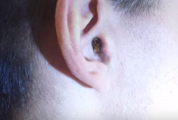 Ухо ребенка с серной пробкой