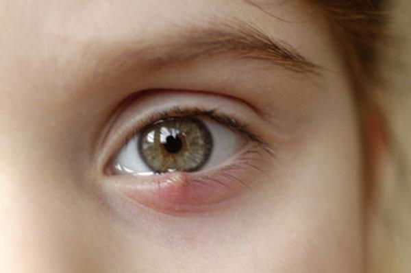 У ребенка ячмень на глазу