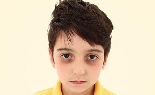 Болезненный мальчик с темными мешками под глазами