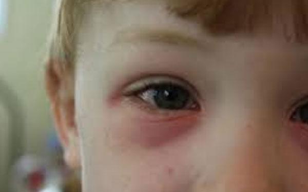 Красные мешки под глазами ребенка