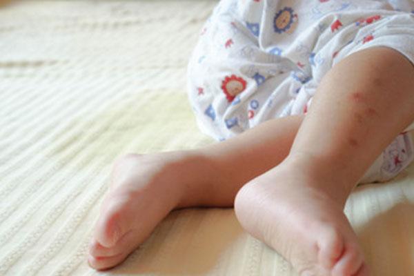 Записянный ребенок в кровати