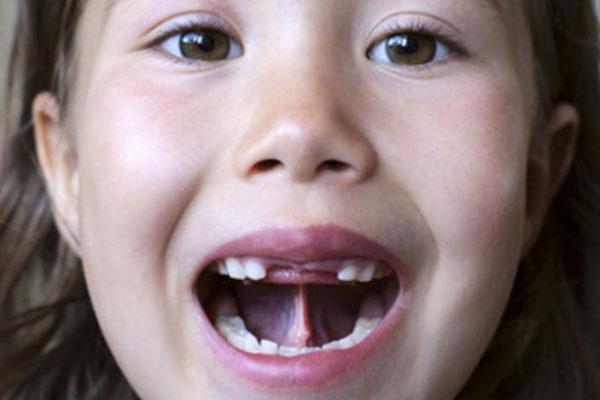 Девочка с открытым ртом тянет язык к небу, видна уздечка