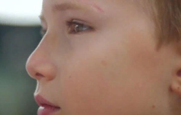Лицо мальчика со шрамом над бровью