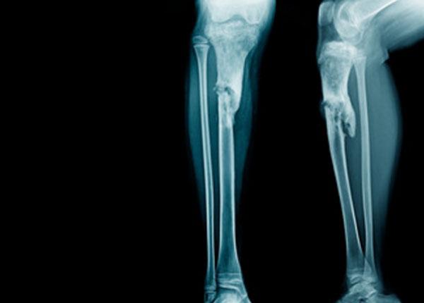 Рентген нижних конечностей, пораженных остимиелитом