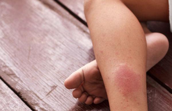 Заболевание коронарной артерии у девочки. Красное пятно на ноге
