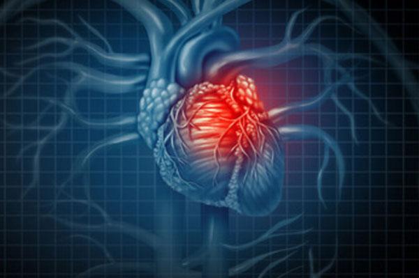 Изображение сердца. Красным подсвечивается больной участок