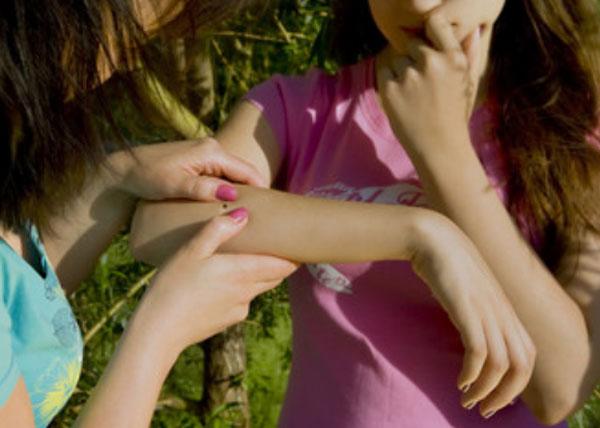 Женщина заметила на руке дочки клеща