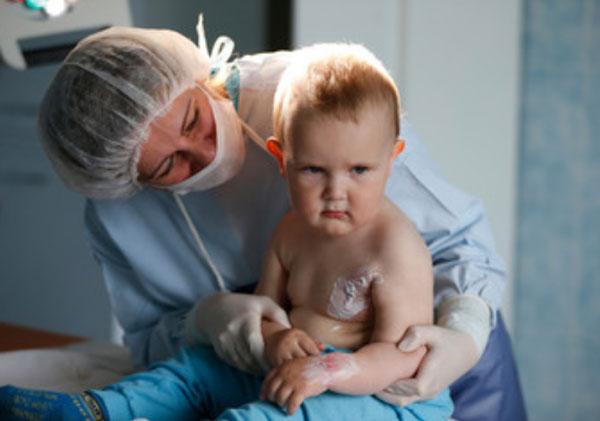Ребенок с ожогами рядом с врачом