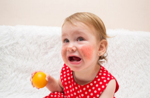 У девочки сильный диатез на щеках. В руке она держит апельсин