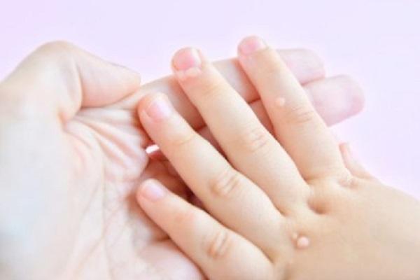 Рука ребенка с множественными бородавками