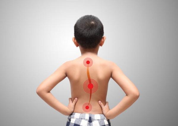Мальчик стоит спиной, схематически отмечен искривленный позвоночник